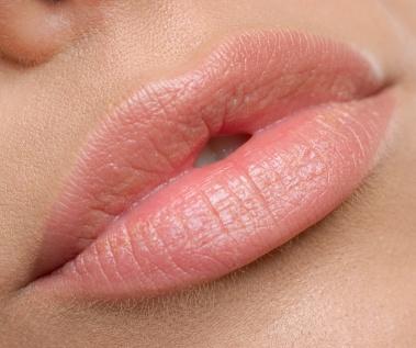 Augmentation des lèvres à Montreal